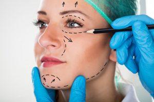 Intervento Chirurgia Estetica